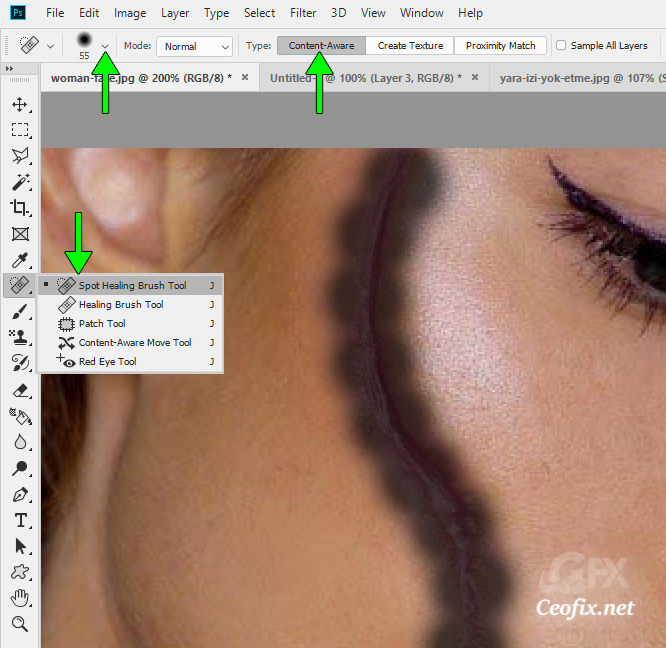 How to Remove Scars in Photoshop